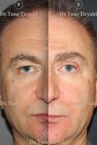 male-upper-lower-blepharplasty