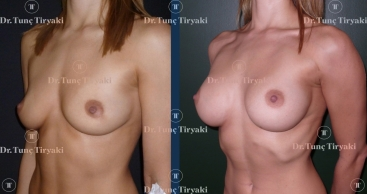 breast-augmentation-300-round