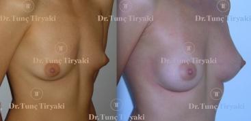 breast-implant-anat.190-cc