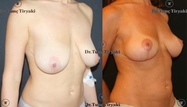 breast-lift-TT