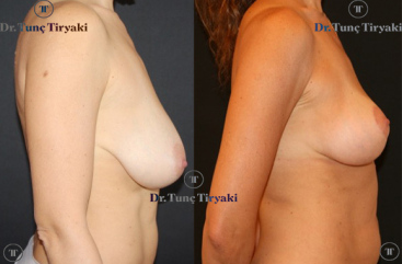 breast-linft