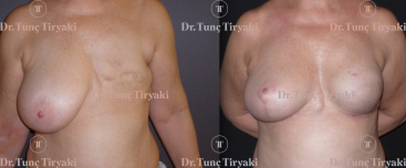 stem-cell-implant-breast-reconstruction