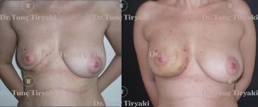 stem-cell-breast-reconstr.