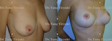 breast-uplifting-2