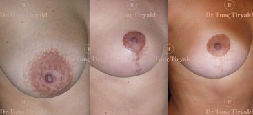 mastopexy-reduction-scar-evolution