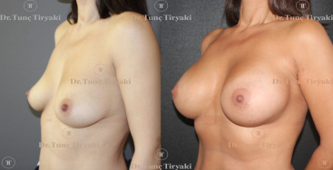 breast-augmentation-325-anatomical