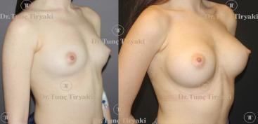 breast-implants-260cc