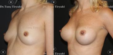 breast-implants-260-round