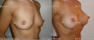 breast-augmentation-275cc-anatomical