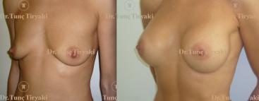 breast-augmentation-300cc-round