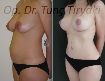 mastopexy-augmentation-abdominoplasty-1