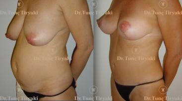 mastopexy-abdominoplasty