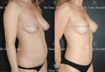 endoskopik-tummy-tuck-mastectomy-implant-reconstruction