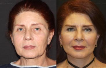 face-neck-lift-stem-cells-BO