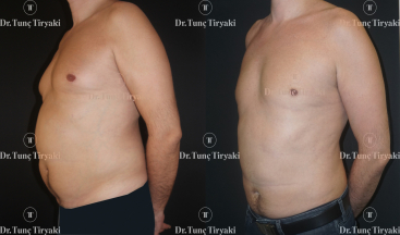 male-abdominal-liposuction