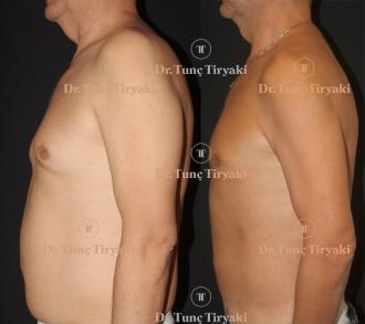 male-abdominal-lipo