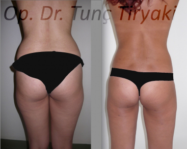 lipo-thighs-and-love-handles