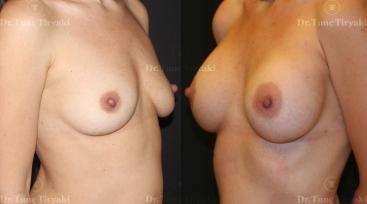 breast-augmantation2