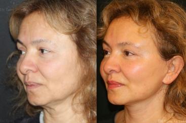 upper-blepharoplasty-stem-cells-microlift