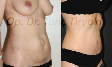 abdominoplasty-4